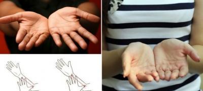 Veličina dlanova otkriva karakter: kako izgledaju vaši?